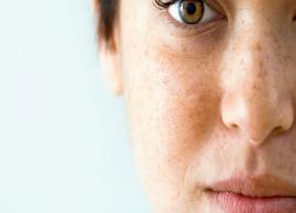 5 Home Remedies To Get Rid of Brown Spots From Skin