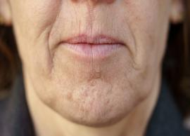 5 Home Remedies To Get Rid of Chin Hair