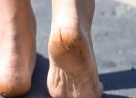 5 Effective Home Remedies To Treat Cracked Heels