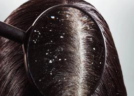 Here are 5 Tips to Remove Dandruff from Root