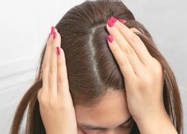 5 Home Remedies Effective To Treat Dandruff