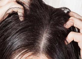 5 Effective Remedies To Treat Problem of Dandruff