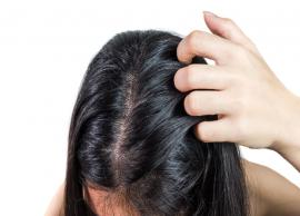 11 Simple and Effective Home Remedies To Treat Dandruff