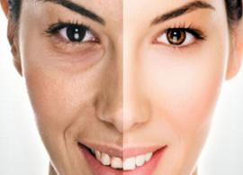 3 Natural Ways To Get Rid of Dark Circles on Face