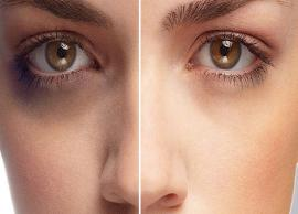 5 Ayurvedic Ways To Treat Dark Circles