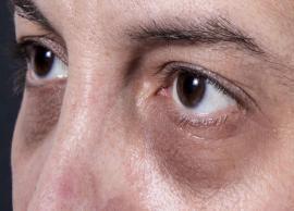 Home Remedies To Help You Treat Under Eye Dark Circles