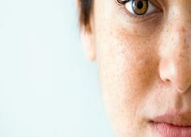 5 Home Remedies Helpful To Get Rid of Dark Spots