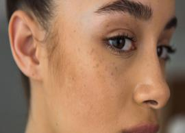 5 Things That Will Help You Get Rid of Dark Spots During Winters
