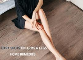 5 Remedies To Get Rid of Dark Spots From Arms and Legs