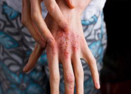 7 At Home Therapies Useful in The Treatment of Dermatitis