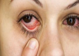 5 Ways To Treat Dry Eyes at Home