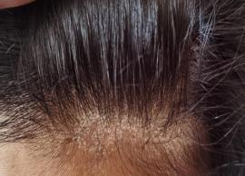 11 Remedies That Will Help You Treat Dry Scalp