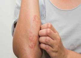 5 Home Remedies To Treat Eczema Scars