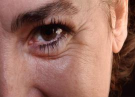 20 Effective Home Remedies For Eye Wrinkles