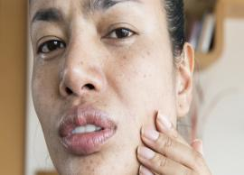 6 Effective Home Remedies For Flaky Skin