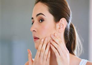 Valentines Special- Instant Ways To Get Rid of Acne