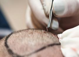 Tips To Follow Before Hair Transplant Surgery
