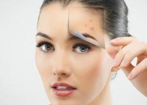 5 Easiest Ways To get Rid of Pimples in Winters