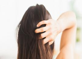 5 Home Remedies To Get Rid of Itchy Scalp During Summer
