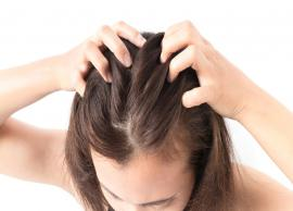 Bid Goodbye To Itchy Scalp During Monsoon With These Natural Remedies