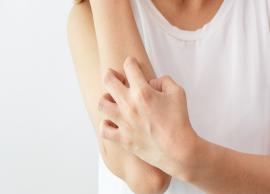 5 Natural Treatment for Itchy Skin
