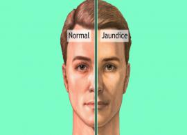 5 Home Remedies Effective For Jaundice