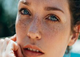 5 Easy Ways To Get Rid of Melasma