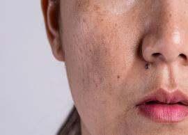 6 Effective Home Remedies To Treat Melasma