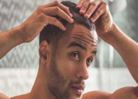 9 Scalp Conditions That Affect Men