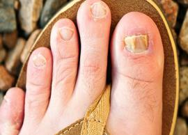 10 Home Remedies To Treat Nail Fungus