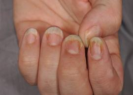 Suffering From Nail Psoriasis? Try These 5 natural Treatment at Home