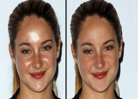 Easy Home Remedies To Reduce Oily Shine From Face