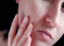 10 Effective Remedies To Treat Open Pores at Home