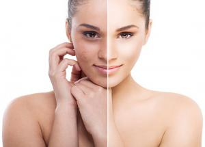 5 Ways To Get Rid of Pigmentation