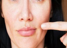 5 Natural Ways To Treat Pimples on Lips