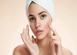 5 Remedies To Reduce Pimple Redness