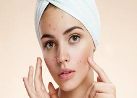 8 Simple Home Remedies To Get Rid of Pimples
