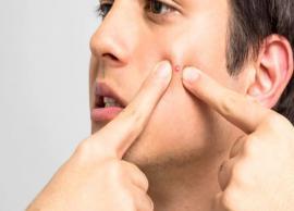 6 Ayurvedic Ways To Treat Pimples