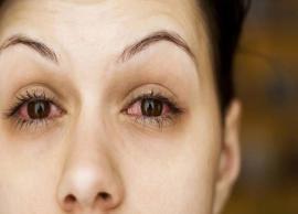 5 Ways To Get Rid of Red Eyes