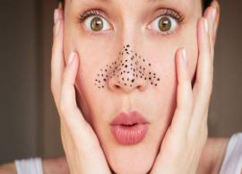 5 Home Remedies To Get Rid of Blackheads