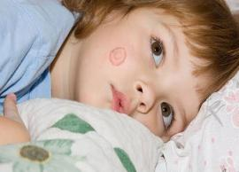 5 Natural Ways To Treat Ringworm in Kids
