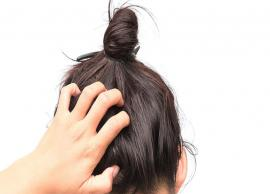Look at Some Irritating Scalp Conditions in Women
