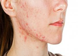 5 Home Remedies Helpful in Treating Cystic Acne