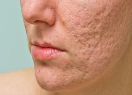 7 Effective Home Remedies To Help You Get Rid of Scars