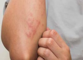 5 Instant Ways To Get Rid of Skin Allergy