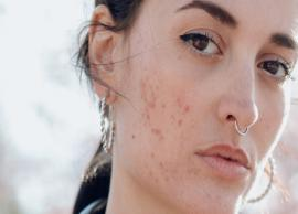 10 Home Remedies To Treat Facial Blemishes