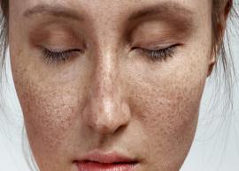 9 Home Remedies To Treat Skin Pigmentation