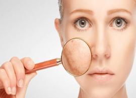 9 Natural Ways To Get Rid of Skin Pigmentation