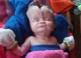दुर्लभ बीमारी की वजह से बिना सिर और दिमाग के पैदा हुई ये बच्ची