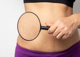 5 Myths About Stretch Marks You Should Completely Ignore